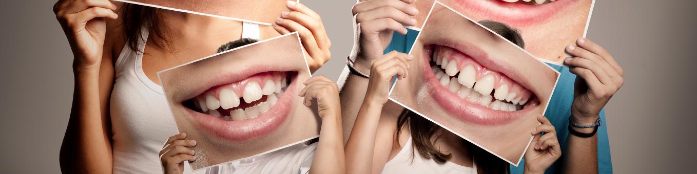 Familie mit Fotos von lachenden Mündern vor Gesicht